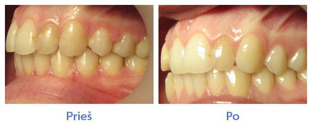 Crowding of teeth - Pi...