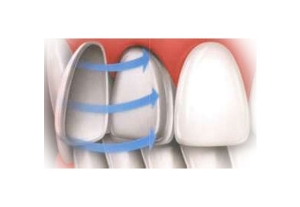 CEREC dental veneers